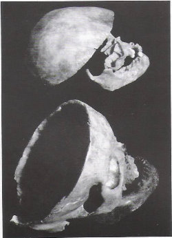 Skulls attributed to Louis XI at the top and to Charlotte de Savoie at the bottom - Histoire de la médecine
