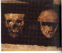 Skulls attributed to Louis XI on the right and to Charlotte de Savoie on the left - Histoire de la médecine